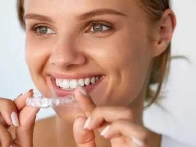牙科矫正 牙科医生想告诉你的几件事