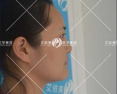 鼻子整形修复 在长沙艾依美做的鼻修复整形效果帮我恢复自信和美丽