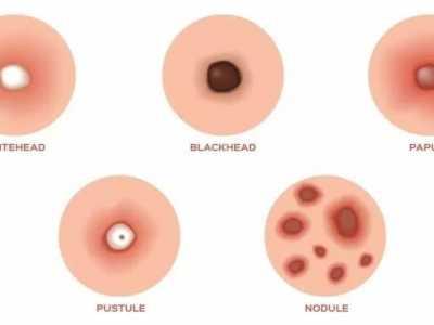 粉刺跟黑头的照片 粉刺和黑头的解决方案